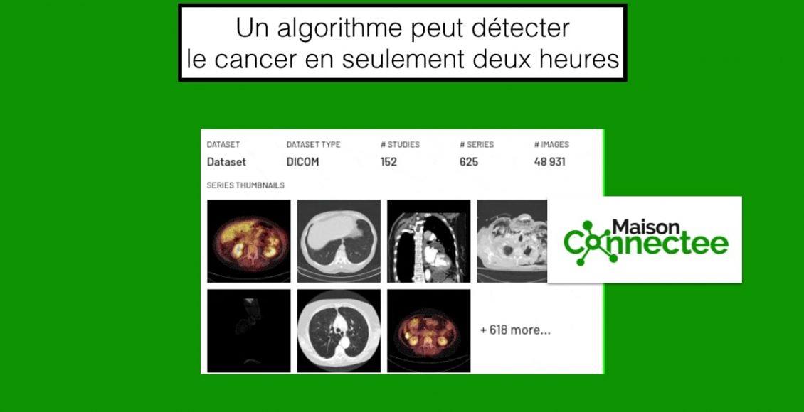 ia-detecte-cancer
